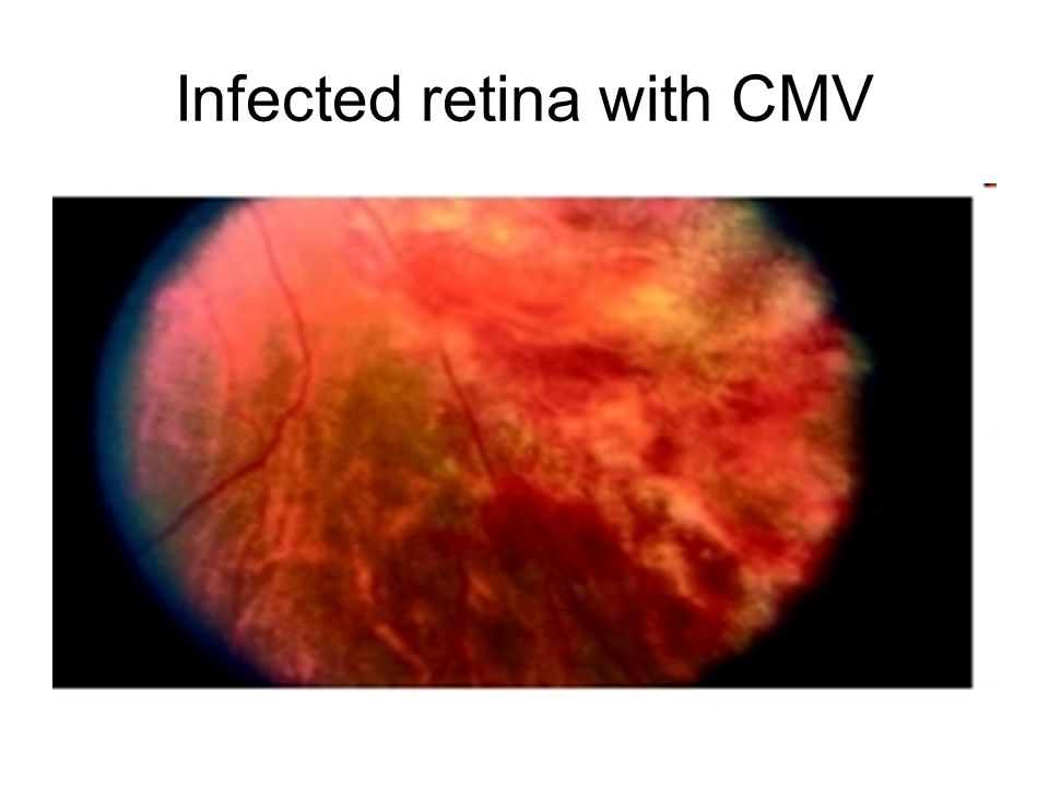 Infected retina with CMV
