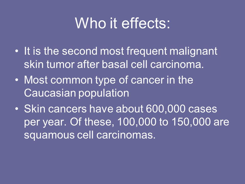 Who it effects: It is the second most frequent malignant skin tumor after basal cell carcinoma.