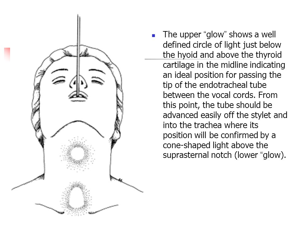 The upper glow shows a well defined circle of light just below the hyoid and above the thyroid cartilage in the midline indicating an ideal position for passing the tip of the endotracheal tube between the vocal cords.