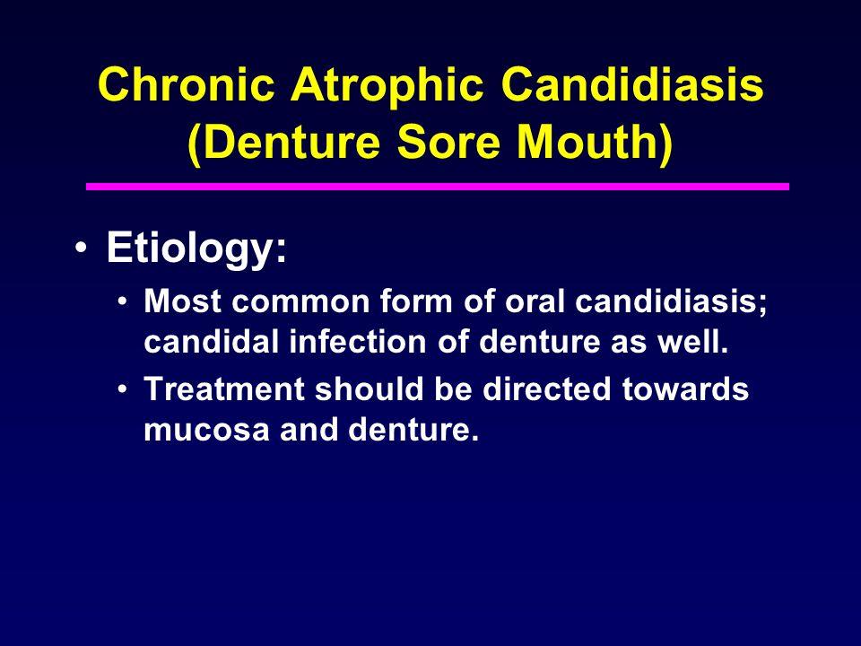 Chronic Atrophic Candidiasis (Denture Sore Mouth)