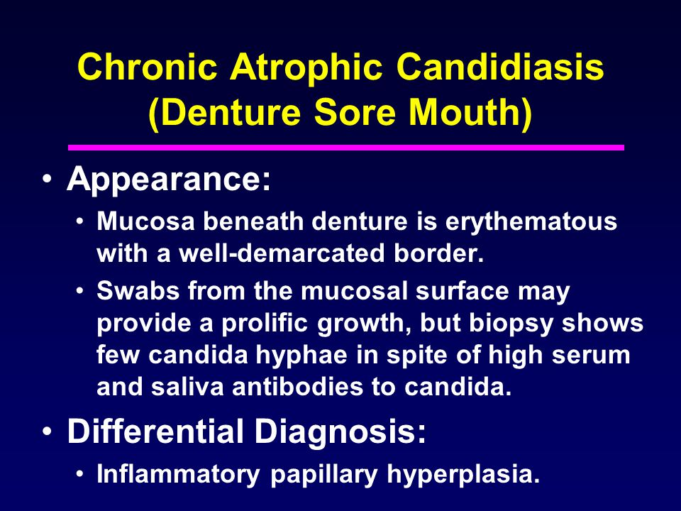 Chronic Atrophic Candidiasis (Denture Sore Mouth)