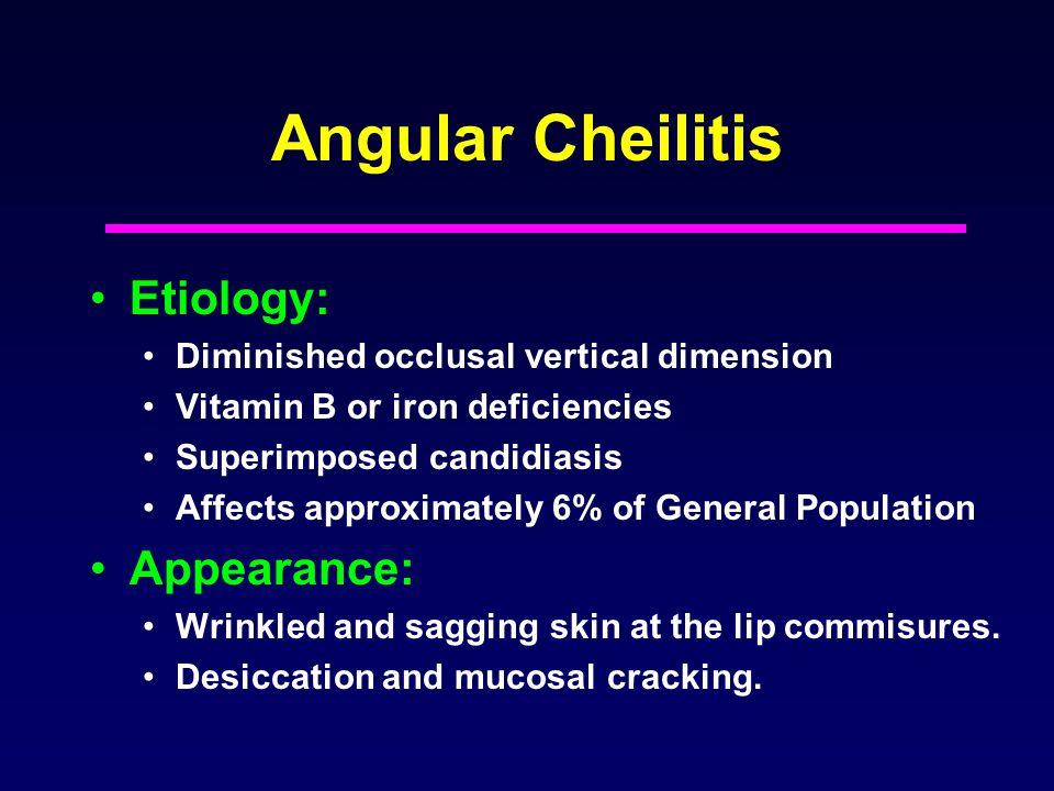 Angular Cheilitis Etiology: Appearance: