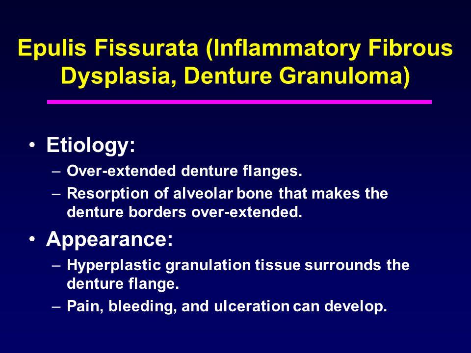 Epulis Fissurata (Inflammatory Fibrous Dysplasia, Denture Granuloma)