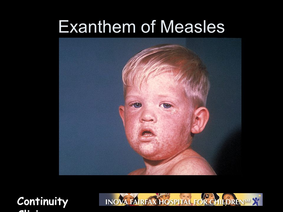 Exanthem of Measles