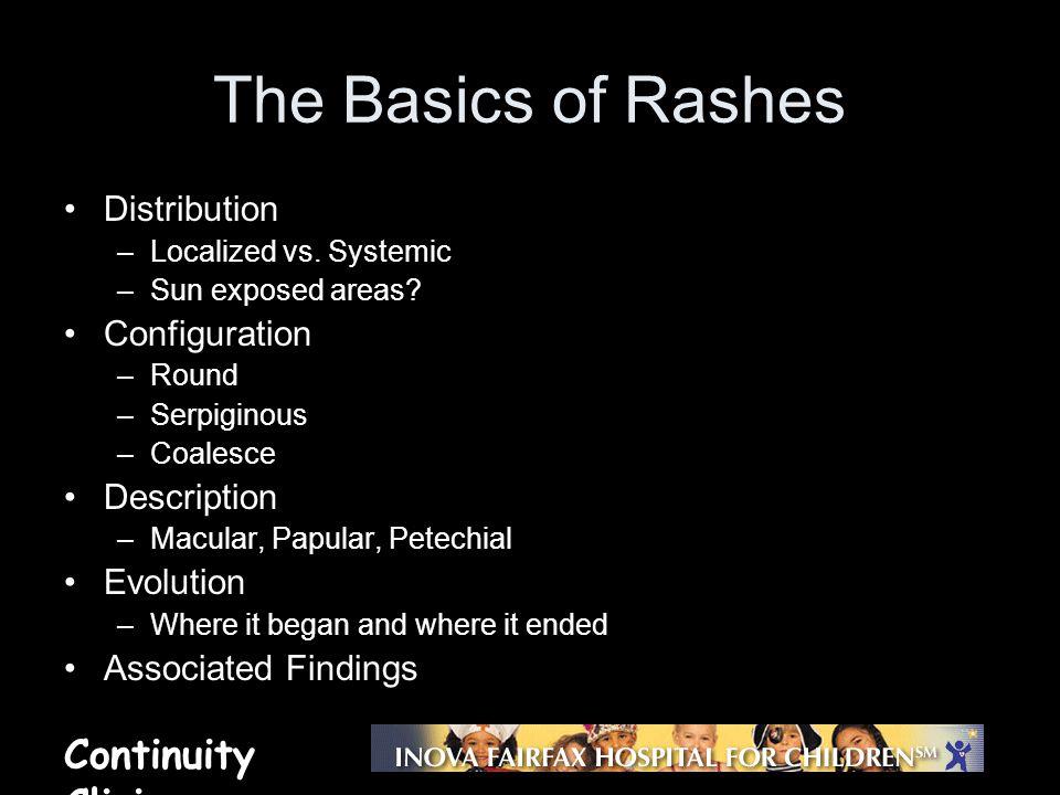 The Basics of Rashes Distribution Configuration Description Evolution