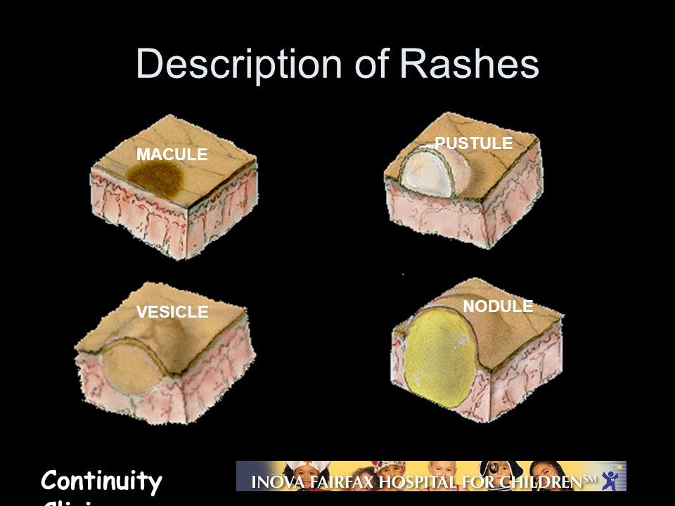 Description of Rashes PUSTULE MACULE NODULE VESICLE