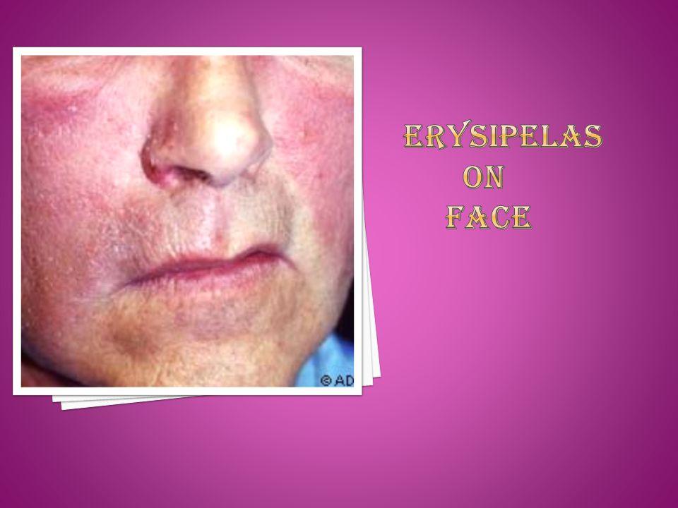 Erysipelas on face