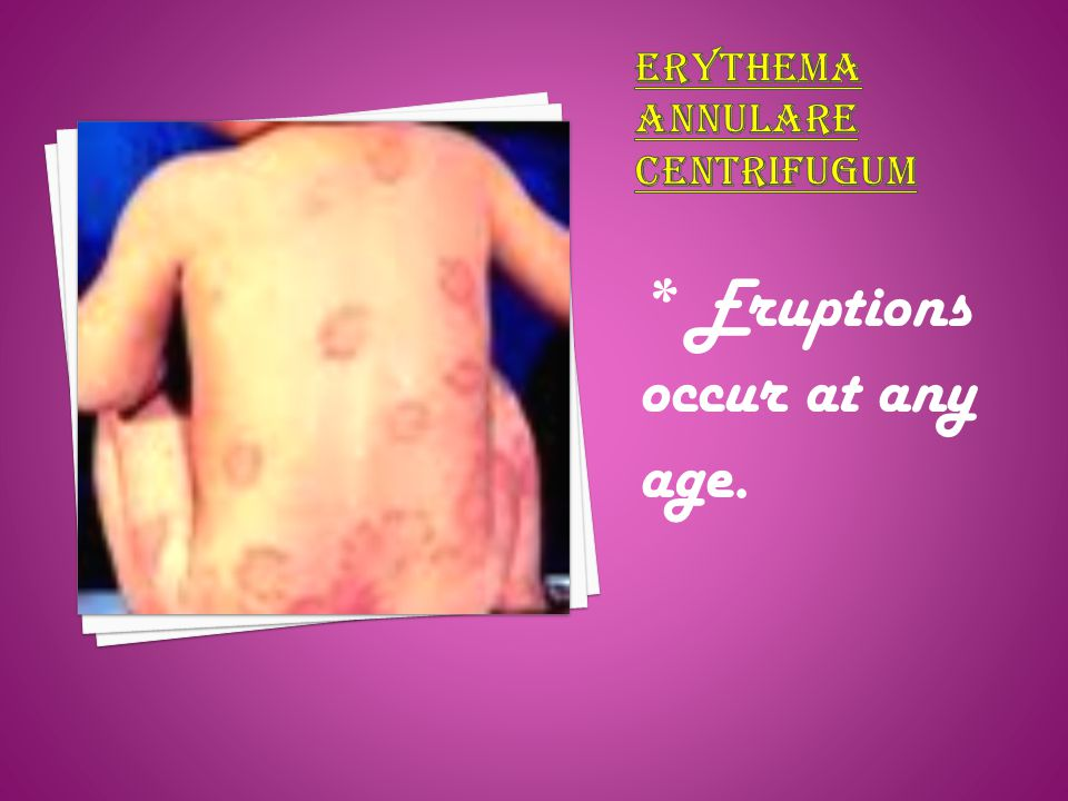 Erythema annulare centrifugum