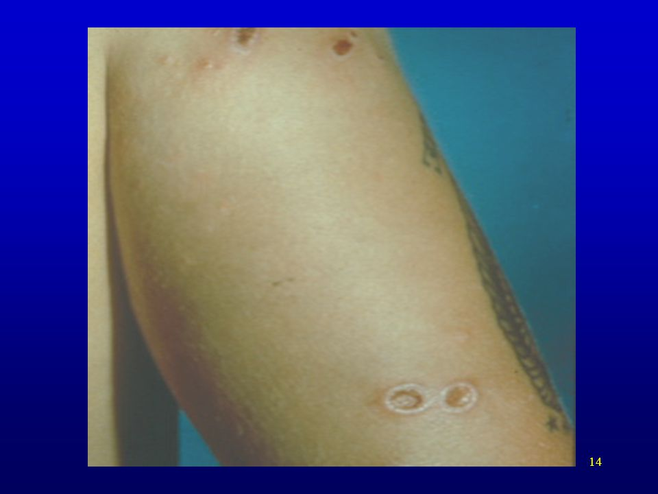 Multiple lesions on arm with a variety of appearances.