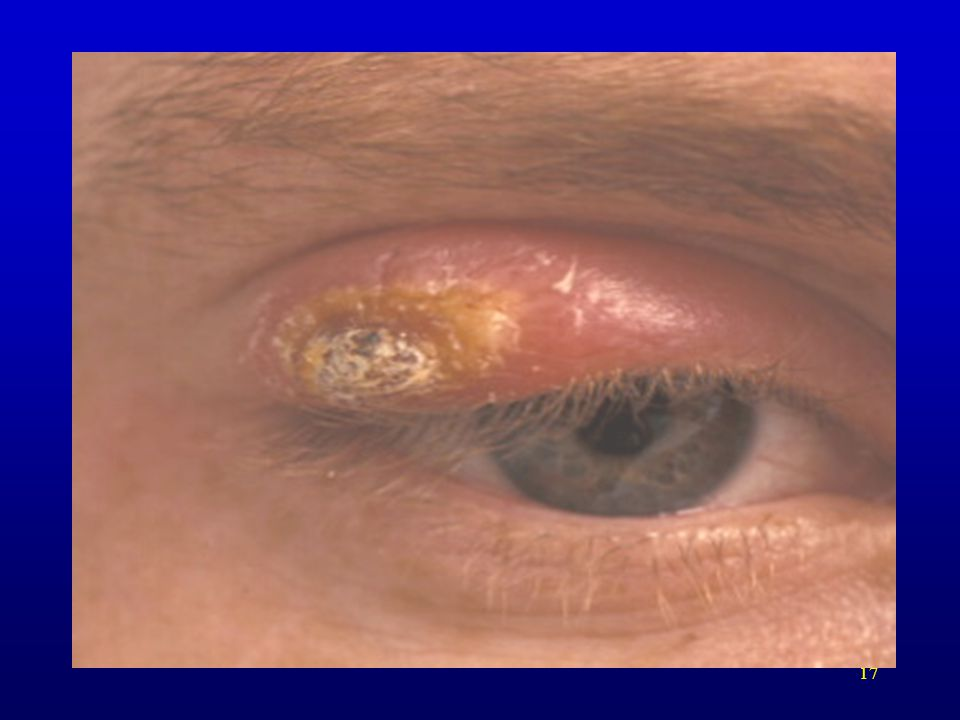 Upper Eyelid. Note the dry, crusted/scabbed appearance which is different than previous sores shown.