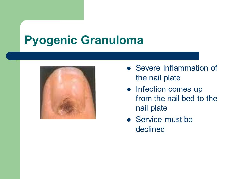 Pyogenic Granuloma Severe inflammation of the nail plate