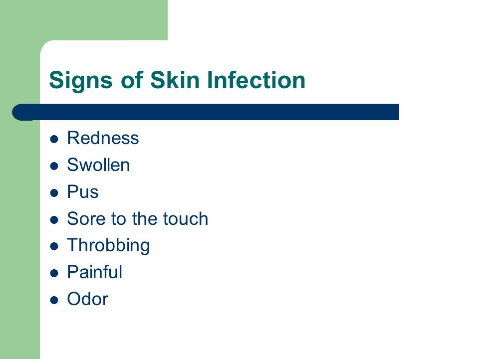 Signs of Skin Infection