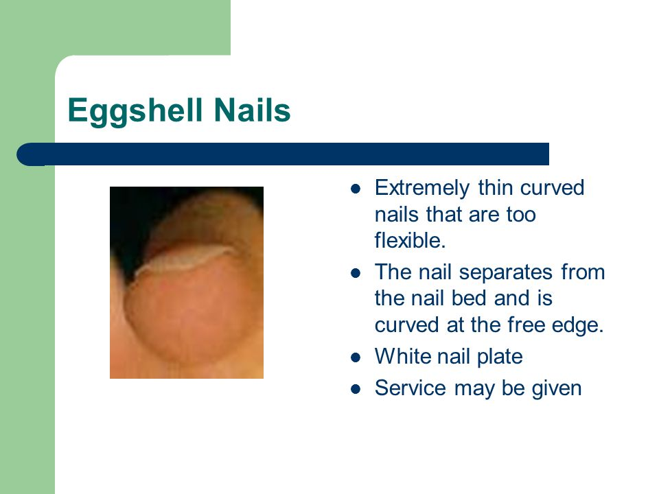 Eggshell Nails Extremely thin curved nails that are too flexible.