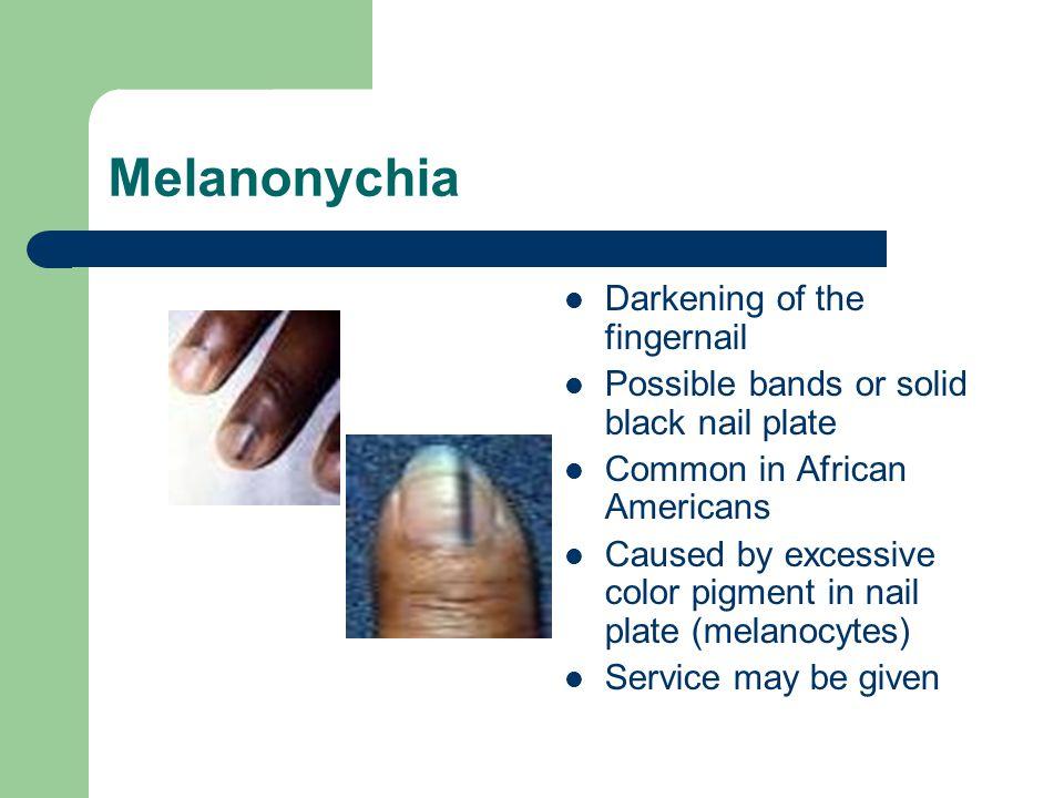 Melanonychia Darkening of the fingernail