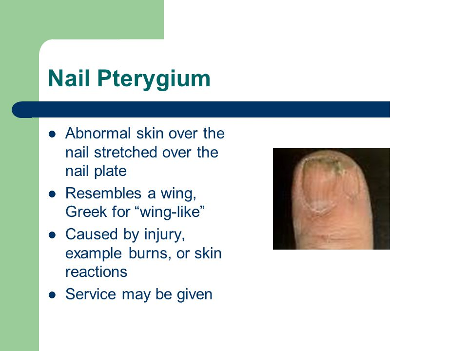 Nail Pterygium Abnormal skin over the nail stretched over the nail plate. Resembles a wing, Greek for wing-like