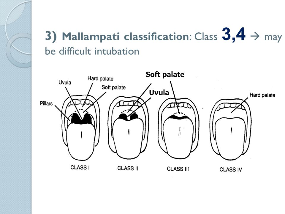 3) Mallampati classification: Class 3,4  may be difficult intubation