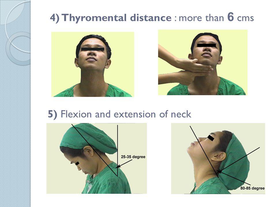 4) Thyromental distance : more than 6 cms