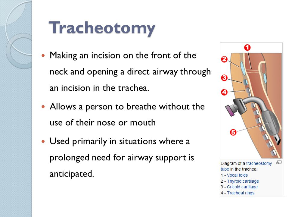 Tracheotomy Making an incision on the front of the neck and opening a direct airway through an incision in the trachea.