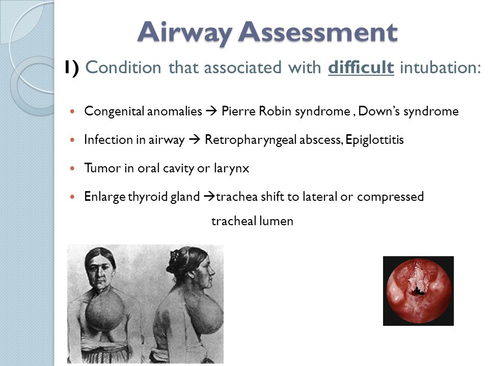 Airway Assessment 1) Condition that associated with difficult intubation: Congenital anomalies  Pierre Robin syndrome , Down's syndrome.