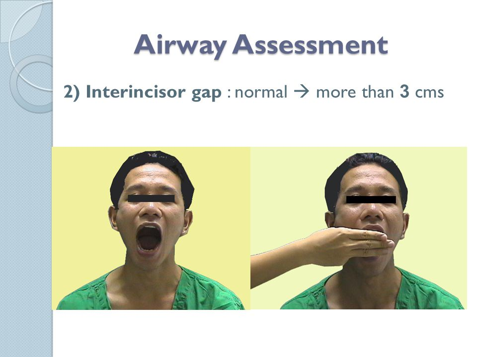 Airway Assessment 2) Interincisor gap : normal  more than 3 cms