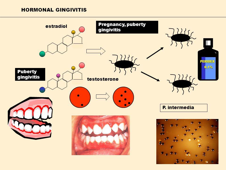 HORMONAL GINGIVITIS Pregnancy, puberty gingivitis estradiol