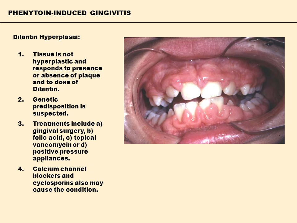PHENYTOIN-INDUCED GINGIVITIS