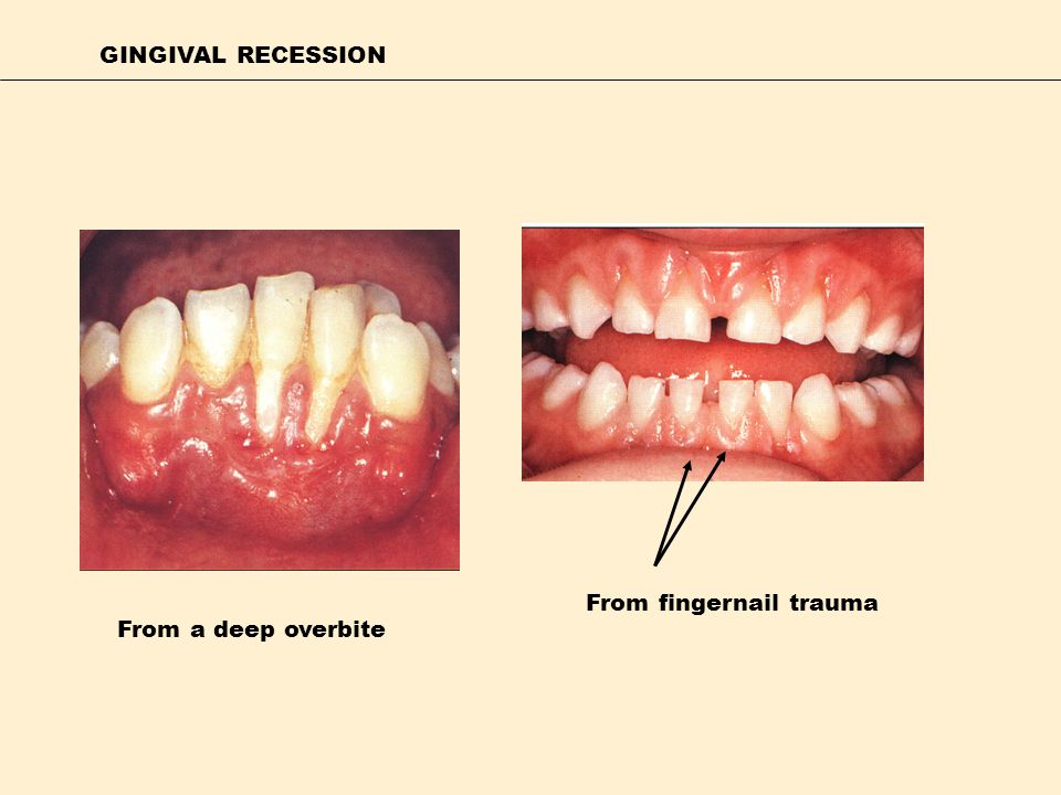 GINGIVAL RECESSION From fingernail trauma From a deep overbite