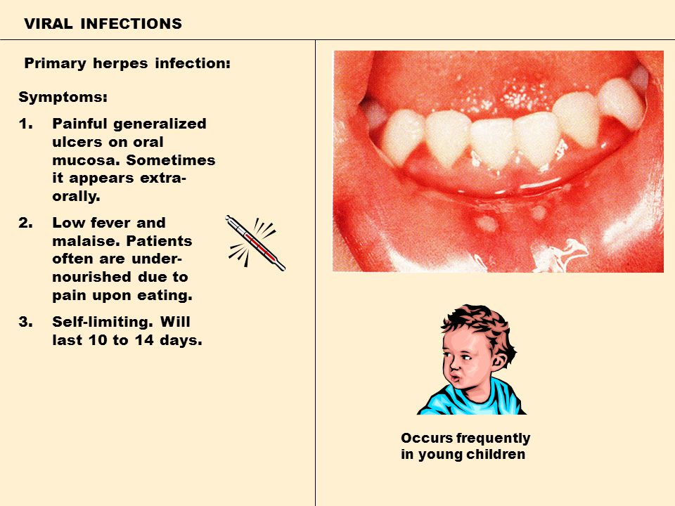 Primary herpes infection: