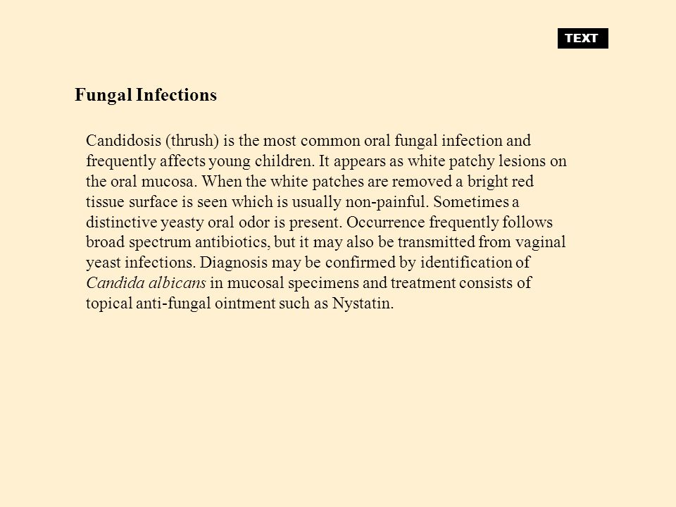 TEXT Fungal Infections.