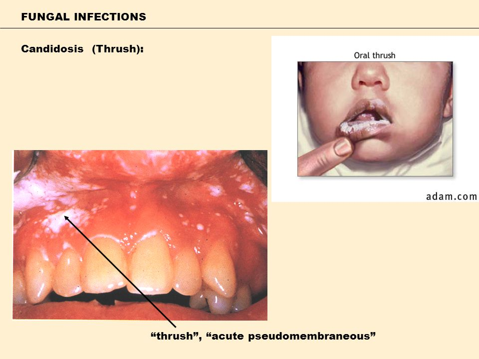 FUNGAL INFECTIONS Candidosis (Thrush): thrush , acute pseudomembraneous