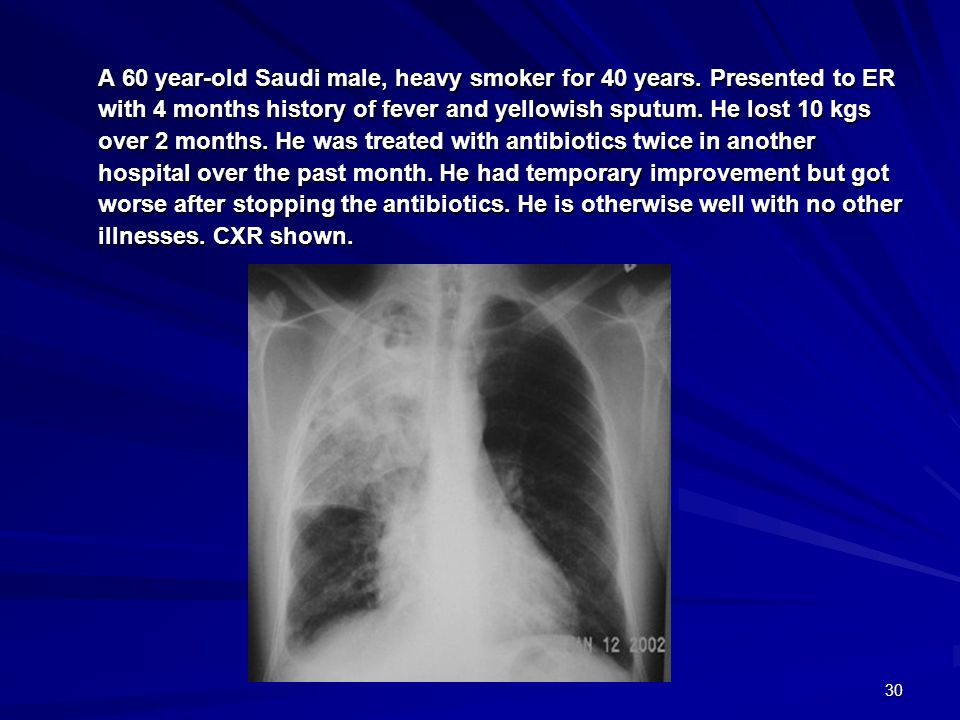 A 60 year-old Saudi male, heavy smoker for 40 years
