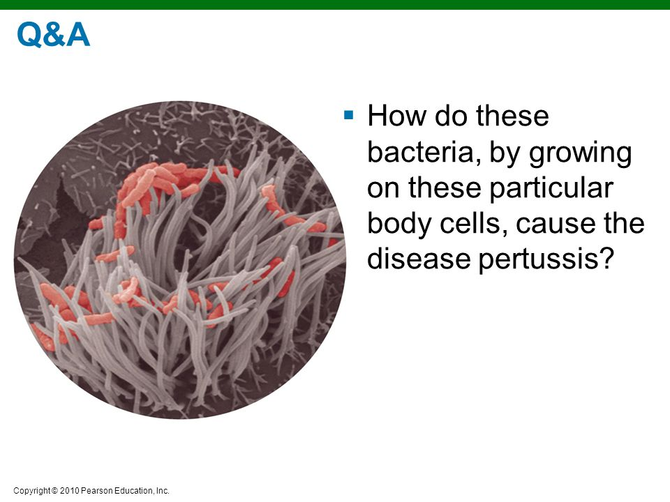 Q&A How do these bacteria, by growing on these particular body cells, cause the disease pertussis