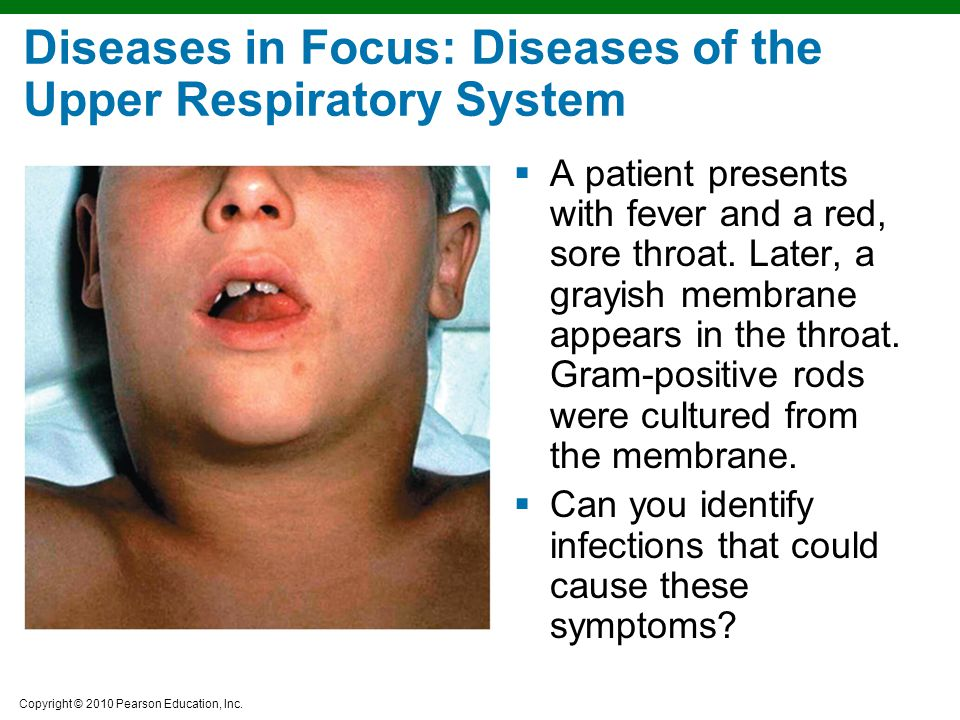 Diseases in Focus: Diseases of the Upper Respiratory System