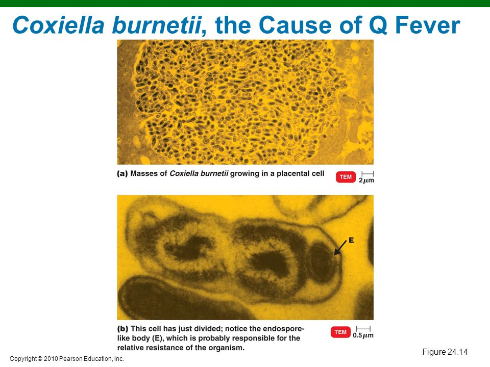 Coxiella burnetii, the Cause of Q Fever