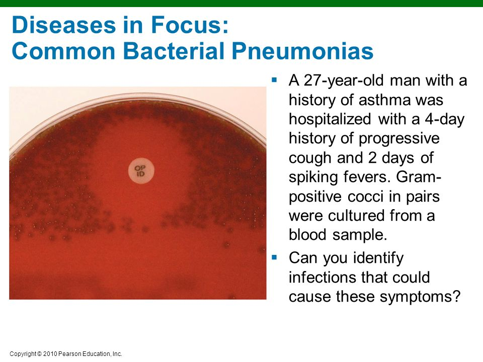 Diseases in Focus: Common Bacterial Pneumonias