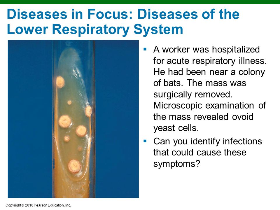 Diseases in Focus: Diseases of the Lower Respiratory System