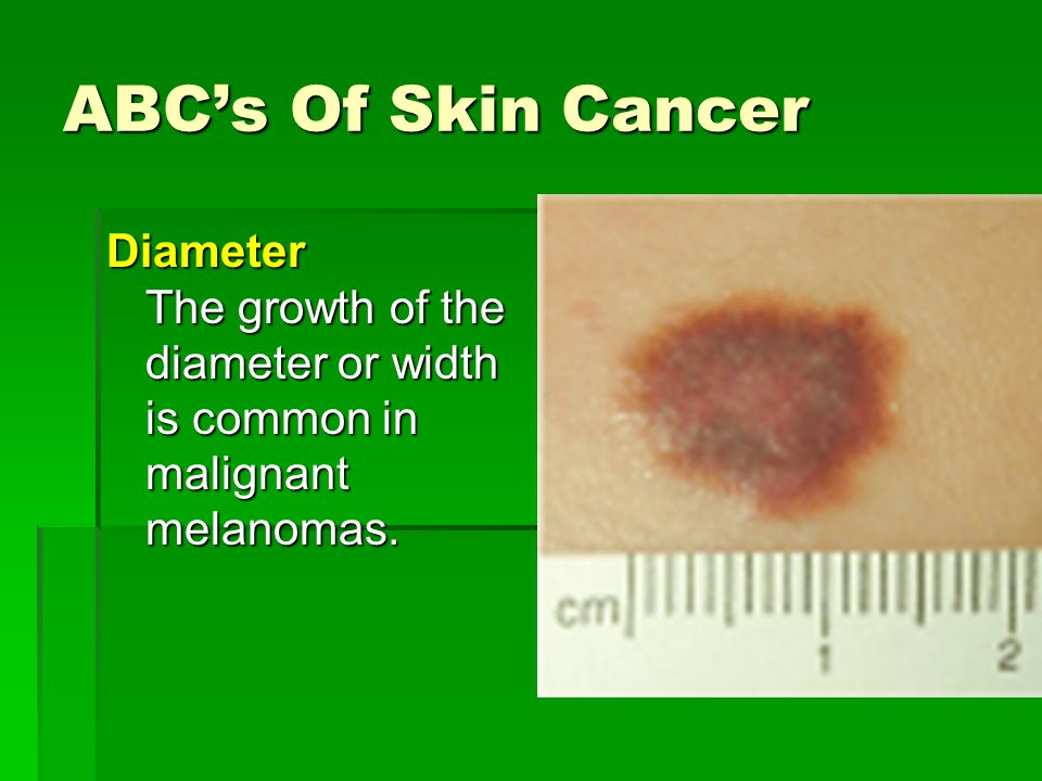 ABC's Of Skin Cancer Diameter The growth of the diameter or width is common in malignant melanomas.