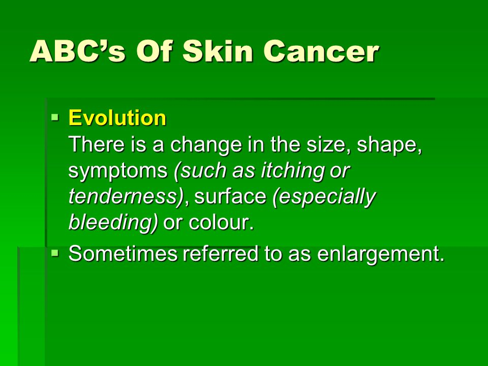 ABC's Of Skin Cancer