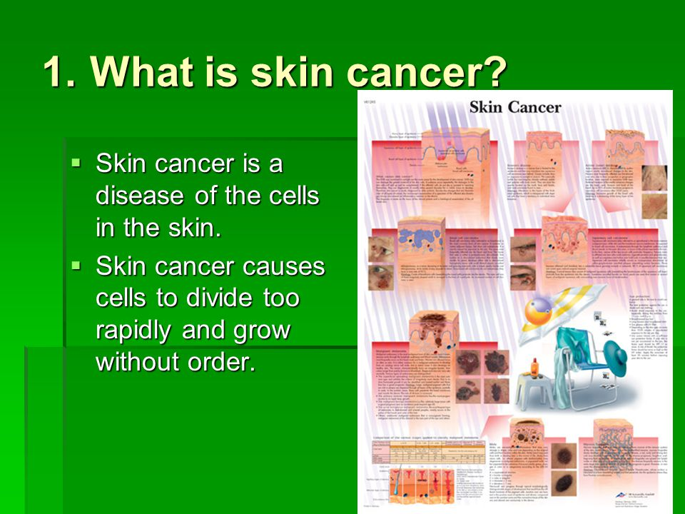 1. What is skin cancer. Skin cancer is a disease of the cells in the skin.