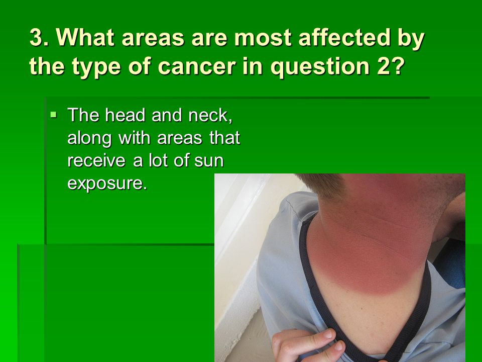 3. What areas are most affected by the type of cancer in question 2