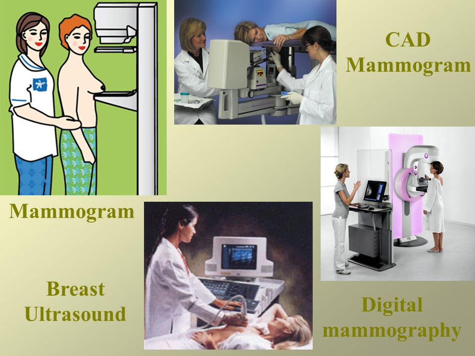 CAD Mammogram Mammogram Breast Ultrasound Digital mammography
