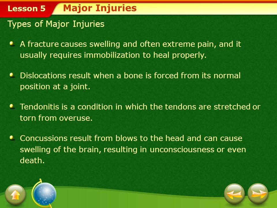 Major Injuries Types of Major Injuries