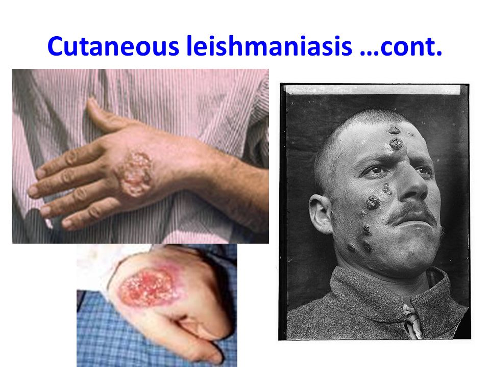 Cutaneous leishmaniasis …cont.