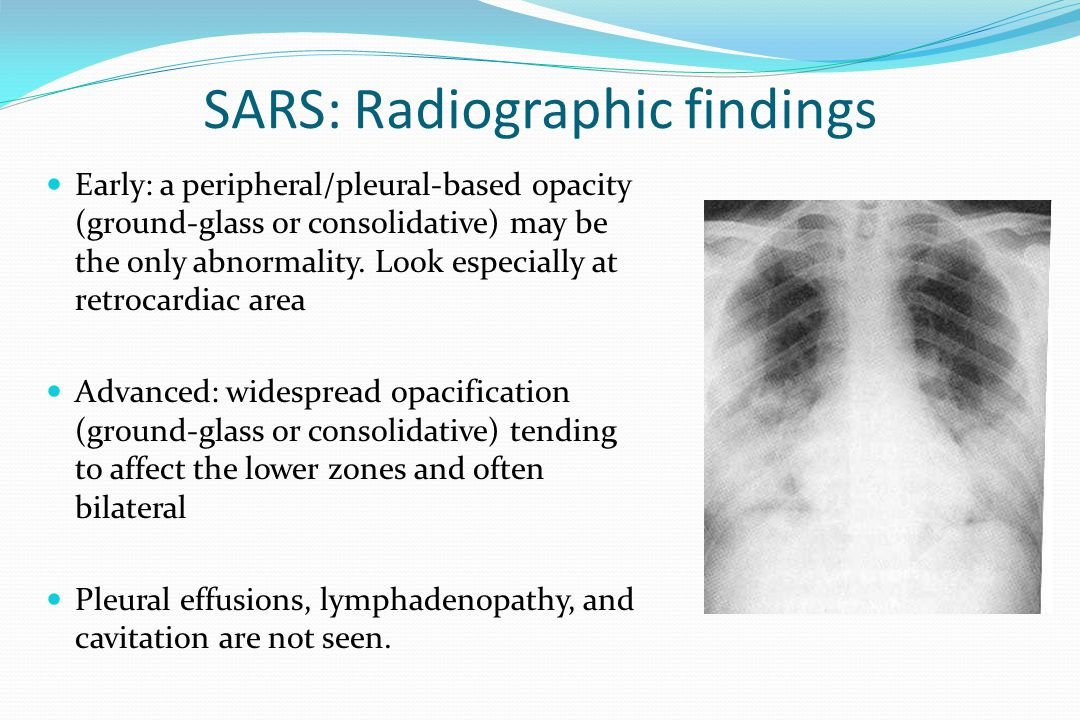 SARS: Radiographic findings