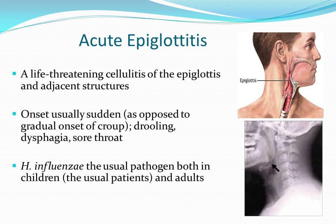Acute Epiglottitis A life-threatening cellulitis of the epiglottis and adjacent structures.