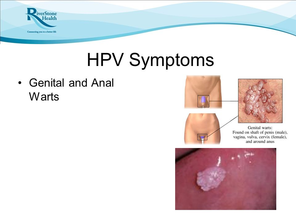 HPV Symptoms Genital and Anal Warts