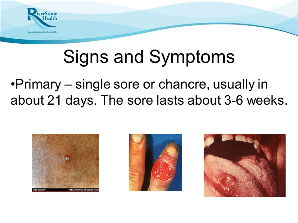 Signs and Symptoms Primary – single sore or chancre, usually in about 21 days. The sore lasts about 3-6 weeks.