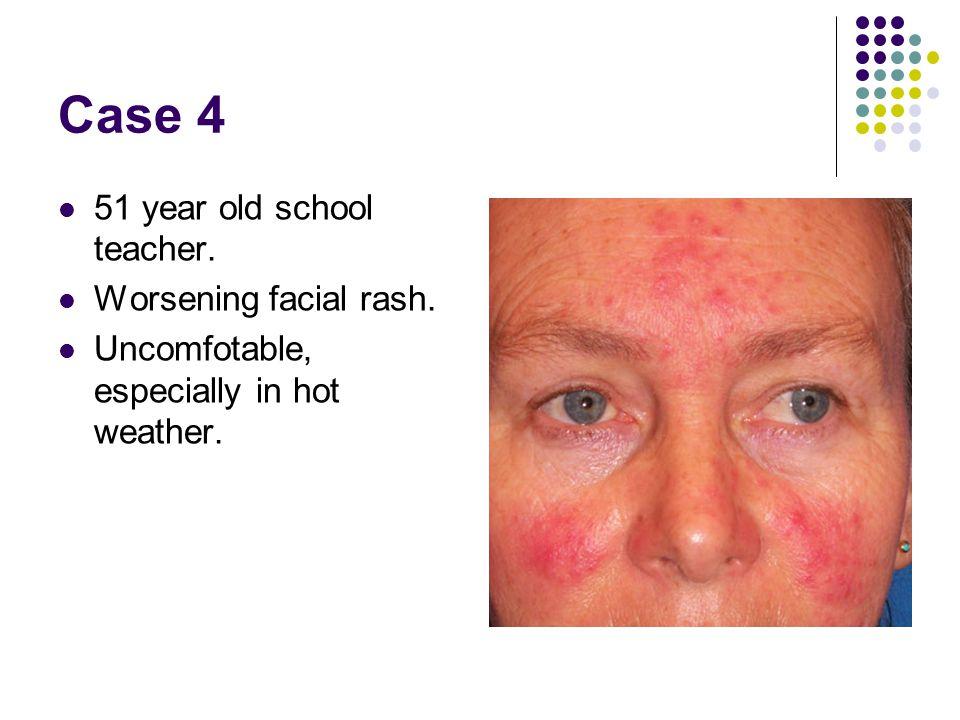 Case 4 51 year old school teacher. Worsening facial rash.