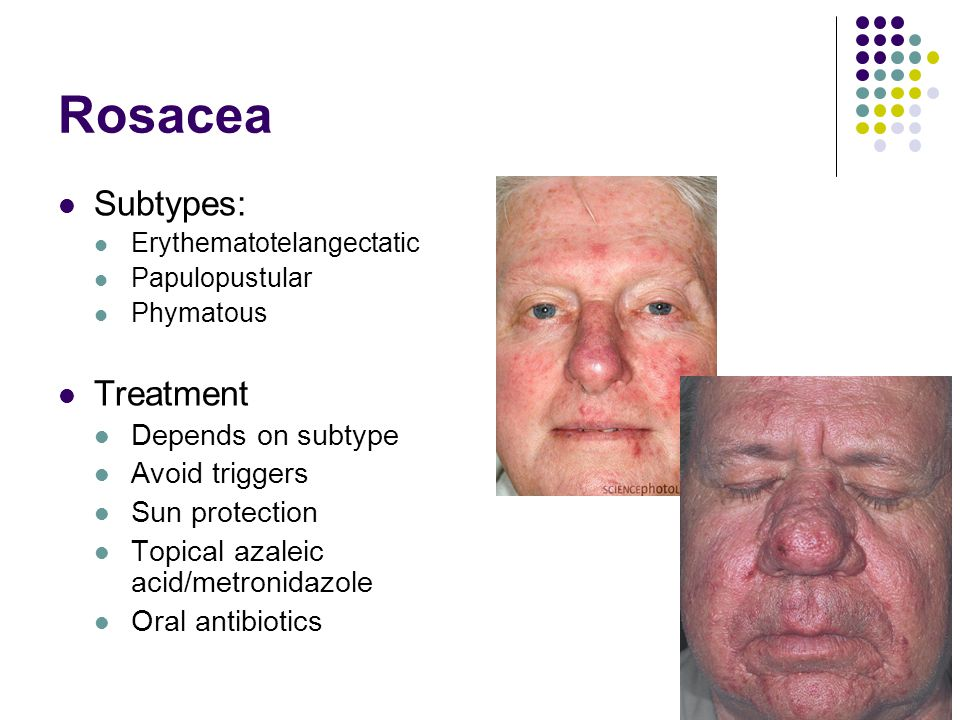 Rosacea Subtypes: Treatment Depends on subtype Avoid triggers