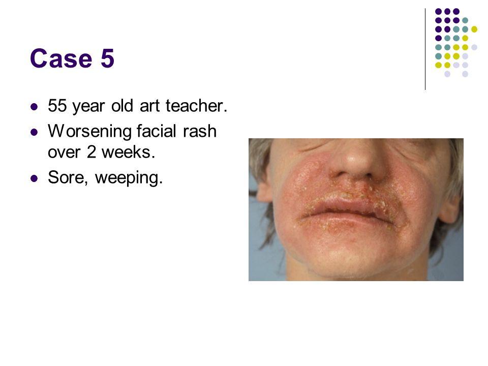 Case 5 55 year old art teacher. Worsening facial rash over 2 weeks.